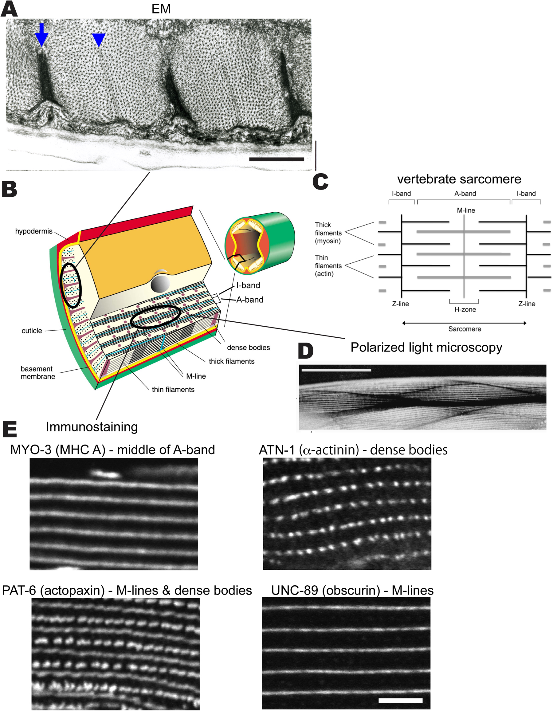 Development structure and maintenance of C elegans body wall muscle