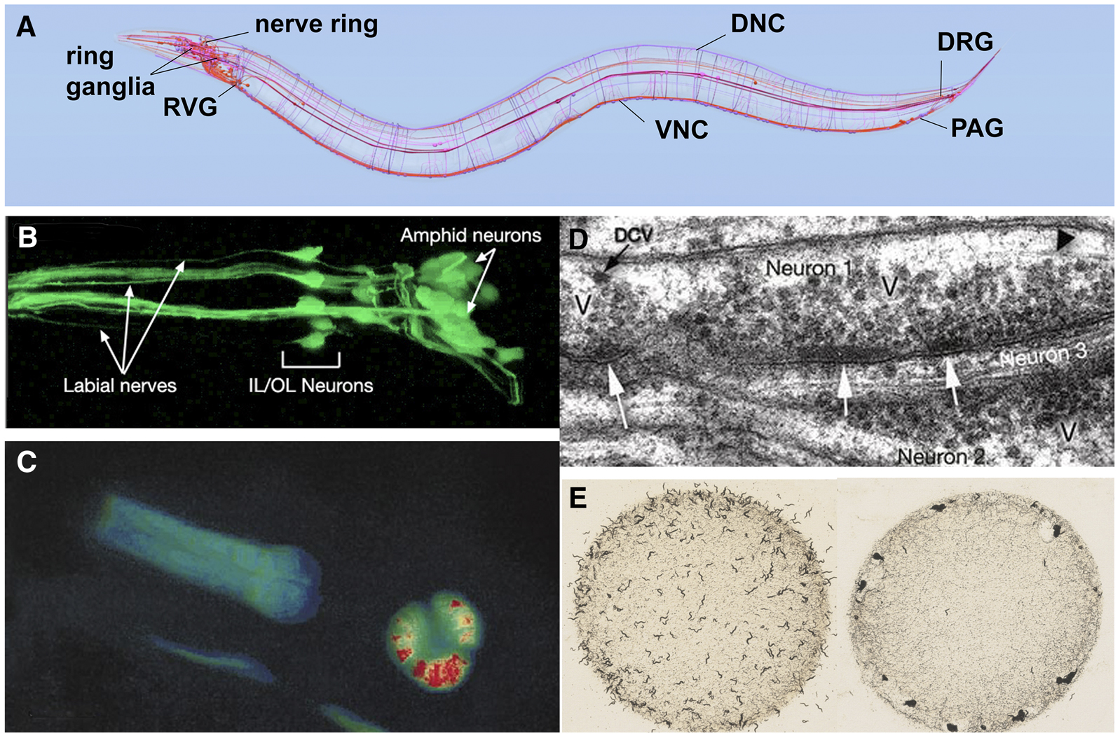 A Transparent Window Into Biology Primer On Caenorhabditis Elegans There Are Several Advantages Of Using Ring Circuit Figure 4 Anatomy And Study The C Nervous System Diagram Identifying Some Major Nerve Bundles Ganglia