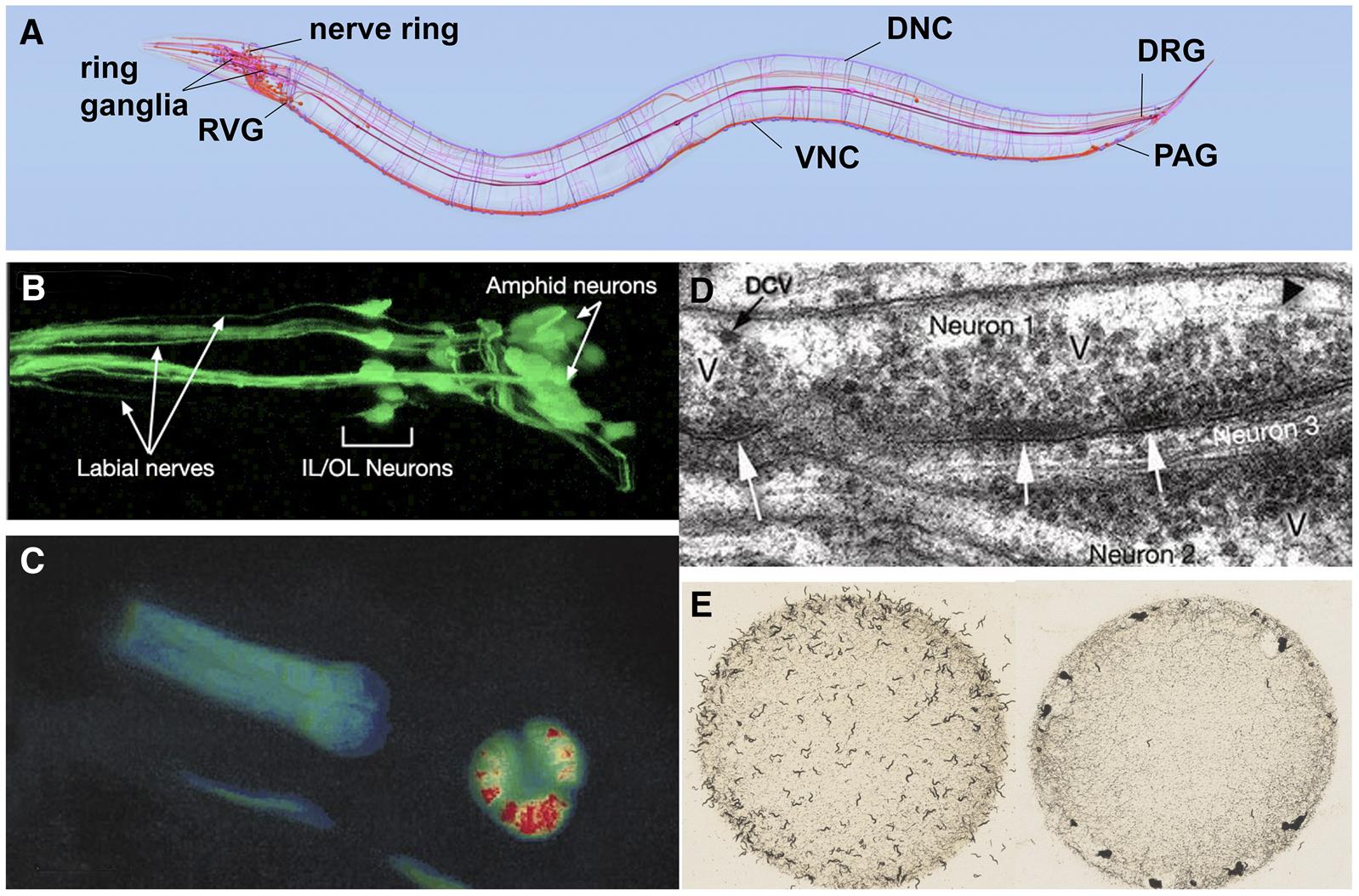A Transparent Window Into Biology Primer On Caenorhabditis Elegans Prokaryotic And Eukaryotic Cells Diagram The Greatest Garden Figure 4 Anatomy Study Of C Nervous System Identifying Some Major Nerve Bundles Ganglia