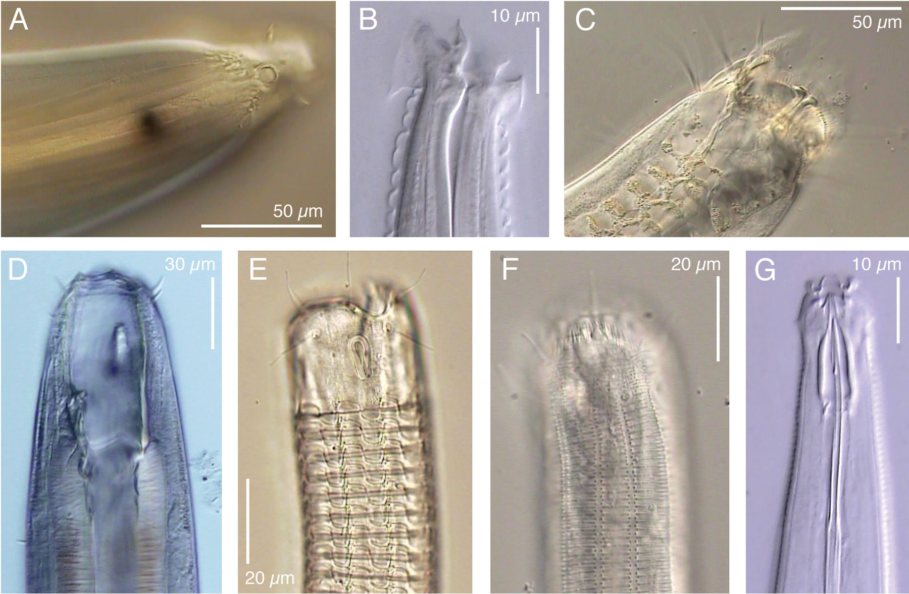A Quick Tour Of Nematode Diversity And The Backbone Of Nematode